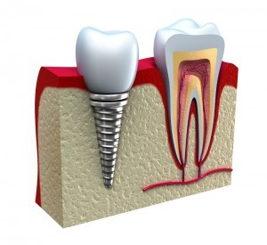 Benefits of Getting Titanium Implants